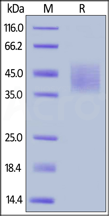 Human DNAM-1, His Tag (Cat. No. DN1-H52H6) SDS-PAGE gel