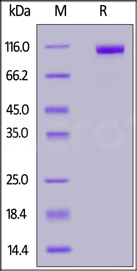 Human DPPIV, Fc Tag (Cat. No. DP4-H5266) SDS-PAGE gel