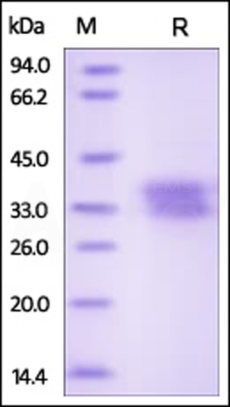 Human Ephrin-B1, His Tag (Cat. No. EF1-H5223) SDS-PAGE gel