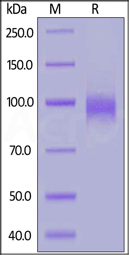 Human EGF R, His Tag (Cat. No. EGR-H5222) SDS-PAGE gel