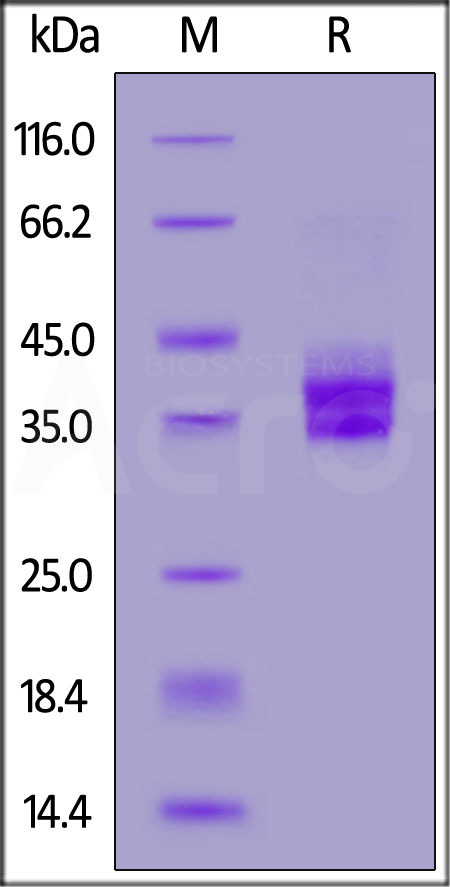 Human EpCAM, His Tag (Cat. No. EPM-H5223) SDS-PAGE gel