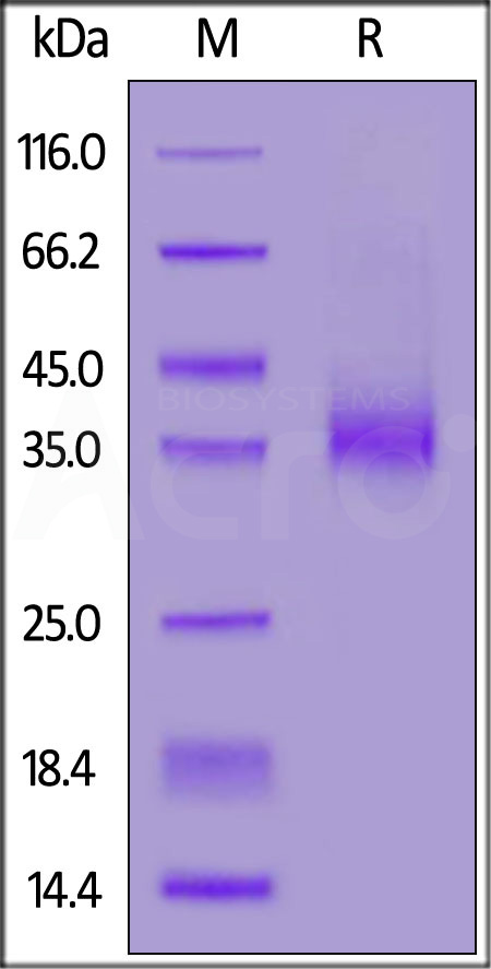 Biotinylated Human EpCAM, His Tag (Cat. No. EPM-H82E8) SDS-PAGE gel