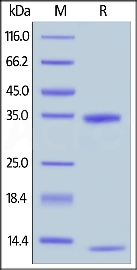 Biotinylated Human FcRn / FCGRT & B2M (Cat. No. FCM-H8286) SDS-PAGE gel