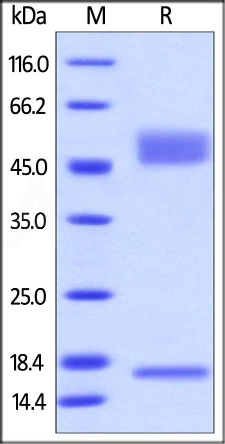 Biotinylated Mouse FcRn / FCGRT & B2M (Cat. No. FCM-M82W6) SDS-PAGE gel