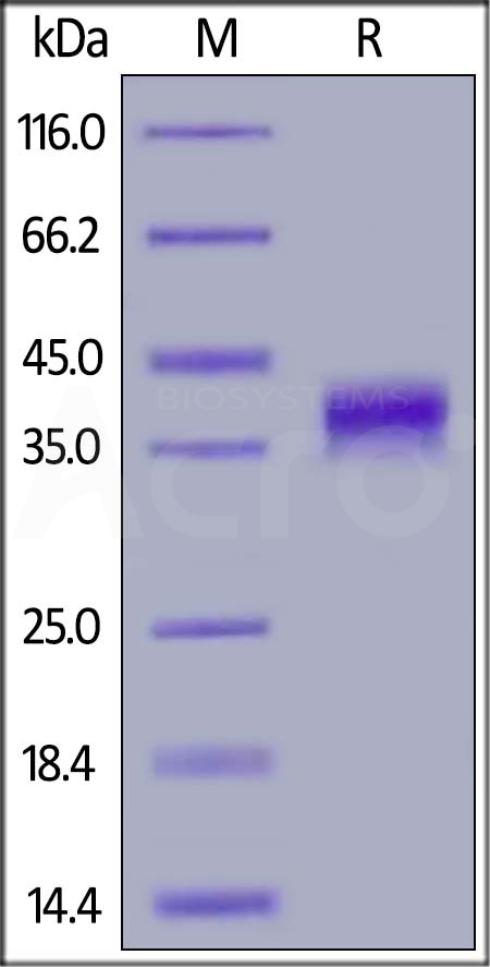 Human FOLR1, His Tag (Cat. No. FO1-H52H1) SDS-PAGE gel