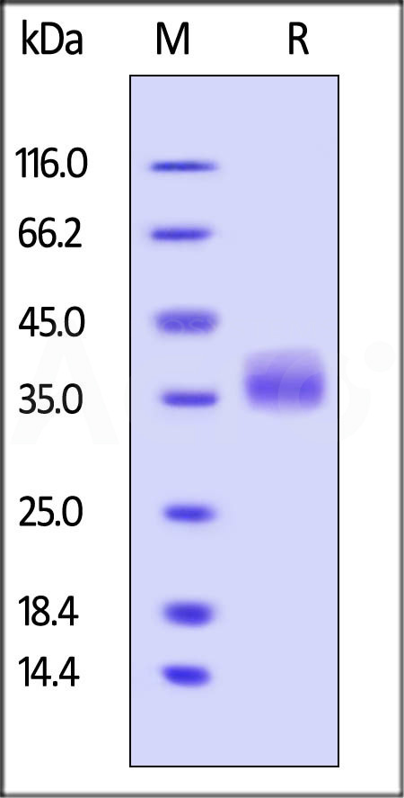 Human Galectin-3, His Tag (Cat. No. GA3-H5247) SDS-PAGE gel