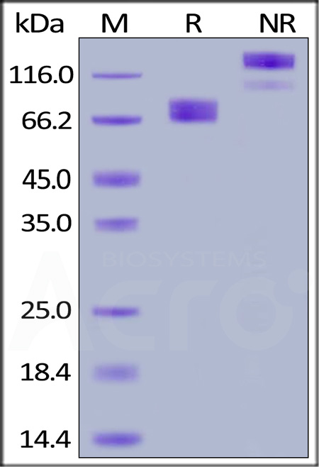 Human GHR, Fc Tag (Cat. No. GHR-H5257) SDS-PAGE gel