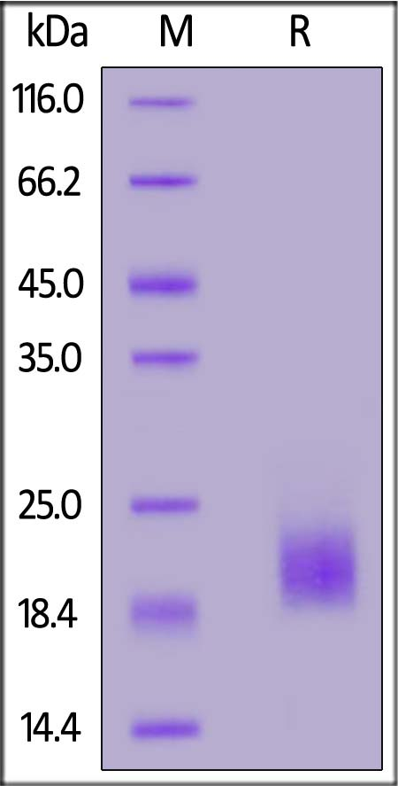 Human HE4, His Tag (Cat. No. HE4-H5223) SDS-PAGE gel