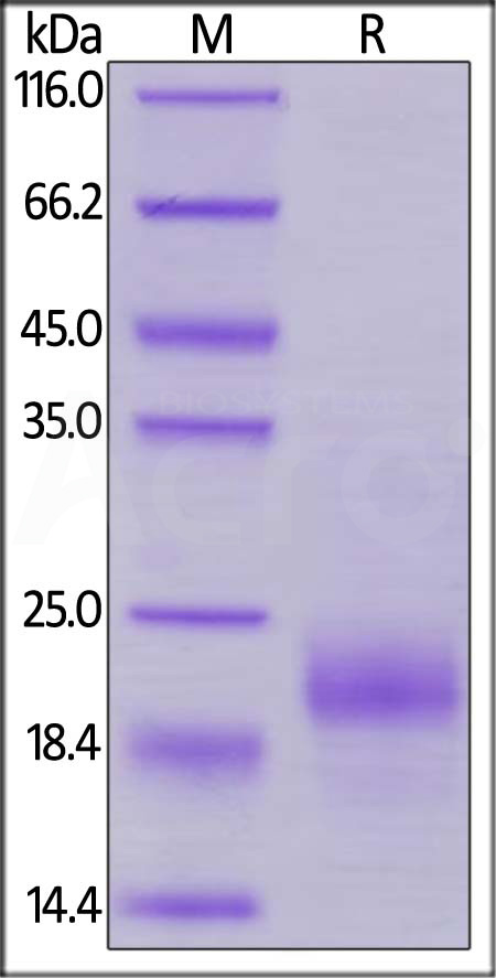 Biotinylated Human HE4, His Tag, Avi Tag (Cat. No. HE4-H82E4) SDS-PAGE gel