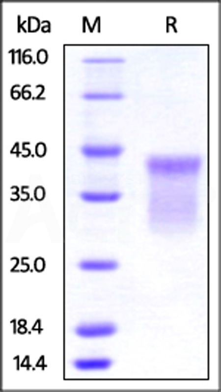 Human HVEM, His Tag (Cat. No. HVM-H52E9) SDS-PAGE gel