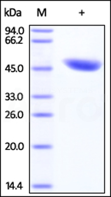 Human IDH1, His Tag (Cat. No. ID1-H5120) SDS-PAGE gel