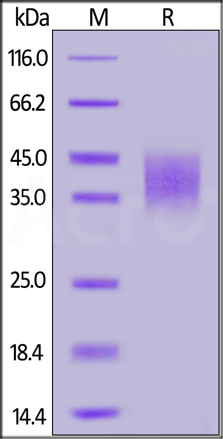 Human IFN-gamma R1, His Tag (Cat. No. IF1-H5223) SDS-PAGE gel