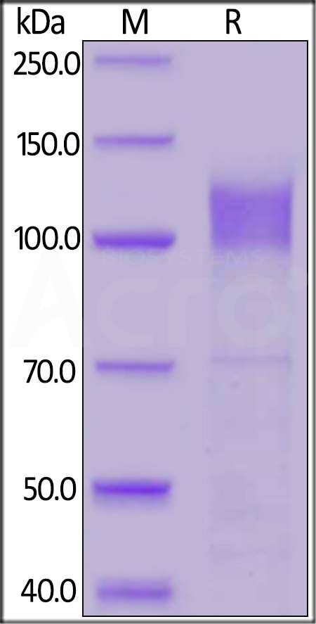 Human IFNAR1, Fc Tag (Cat. No. IF1-H5253) SDS-PAGE gel