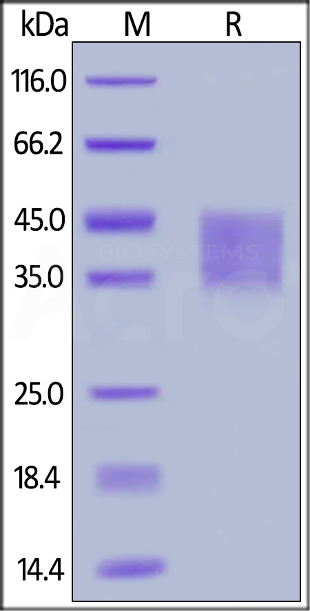 Human IFNAR2, His Tag (Cat. No. IF2-H5224) SDS-PAGE gel