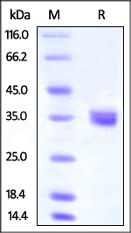 Human IGFBP-4, His Tag (Cat. No. IG4-H52E4) SDS-PAGE gel