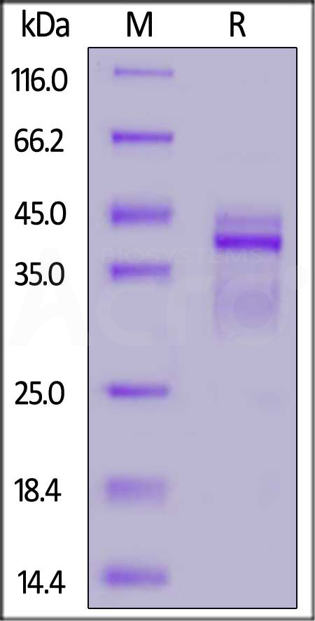 Human IL-12B&IL-12A Heterodimer Protein, His Tag&Flag Tag (Cat. No. IL2-H4210) SDS-PAGE gel
