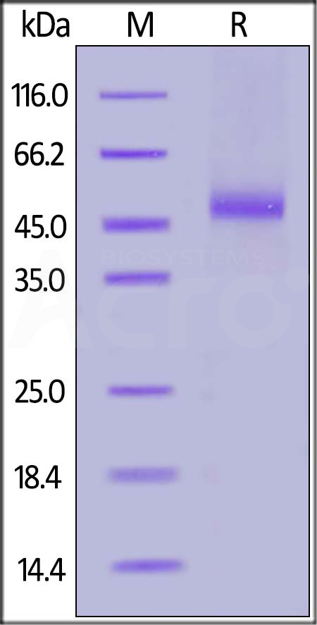 FITC-Labeled Human IL-13 R alpha 2, His Tag (Cat. No. IL2-HF2H3) SDS-PAGE gel