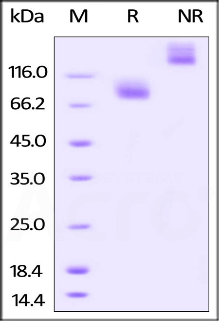 Biotinylated Human IL-7 RA / CD127, Fc Tag (Cat. No. IL7-H82F8) SDS-PAGE gel