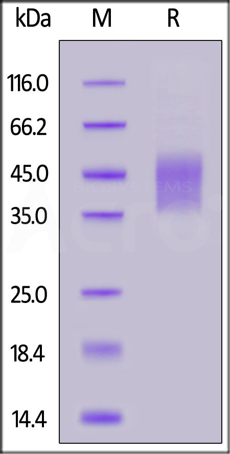 Biotinylated Human IL-4 R alpha / CD124, His Tag (Cat. No. ILR-H82E9) SDS-PAGE gel