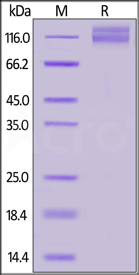 Human ITGAV&ITGB1 Heterodimer Protein, Tag Free&Tag Free (Cat. No. IT1-H5213) SDS-PAGE gel