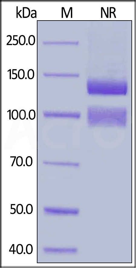 Human ITGAV&ITGB1 Heterodimer Protein, His Tag&Tag Free (Cat. No. IT1-H52E1) SDS-PAGE gel