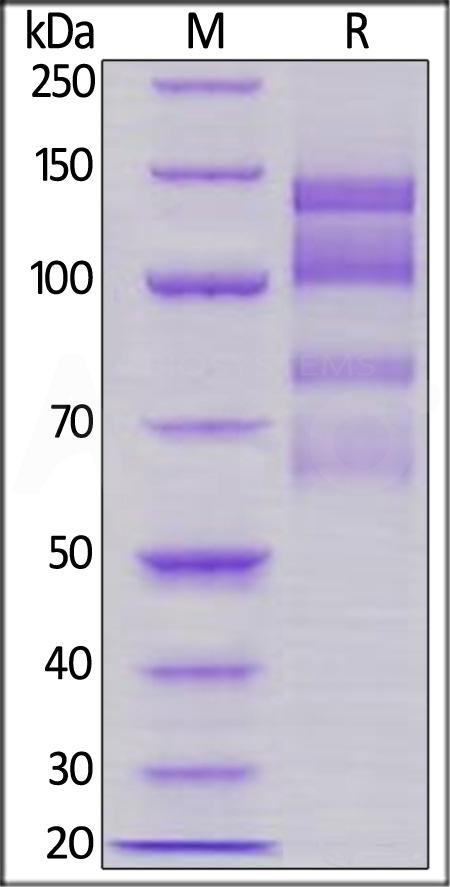 Human ITGA4 & ITGB1 (Cat. No. IT1-H52W1) SDS-PAGE gel