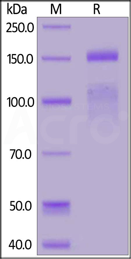 Human ITGA11 & ITGB1 Heterodimer Protein (Cat. No. IT1-H52W3) SDS-PAGE gel