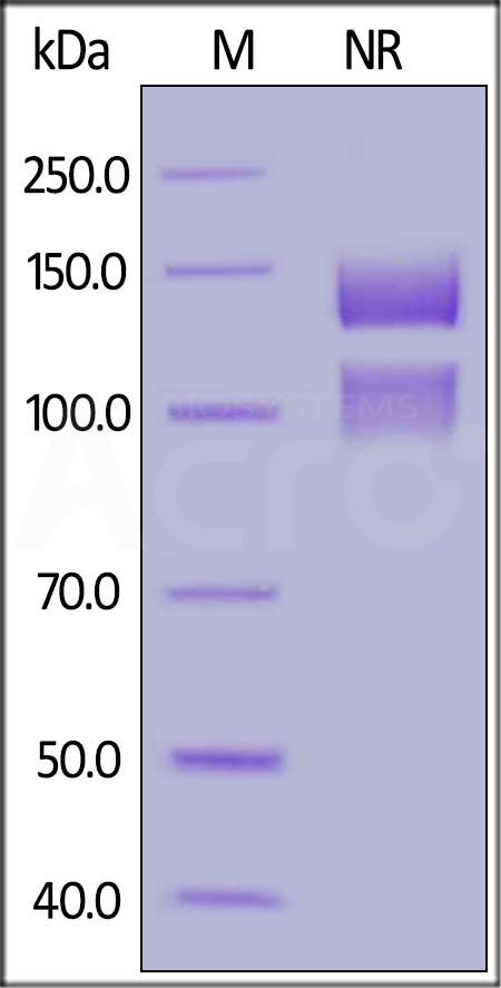 Human ITGA5&ITGB1 Heterodimer Protein, His Tag&Tag Free (Cat. No. IT1-H52W5) SDS-PAGE gel