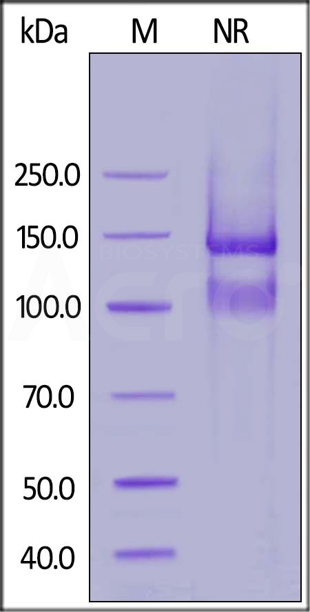 Human ITGA6 & ITGB1 Heterodimer Protein (Cat. No. IT1-H52W7) SDS-PAGE gel
