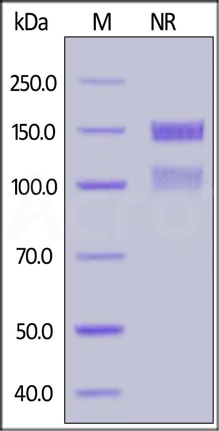 Human ITGA8&ITGB1 Heterodimer Protein, His Tag&Tag Free (Cat. No. IT1-H52W9) SDS-PAGE gel