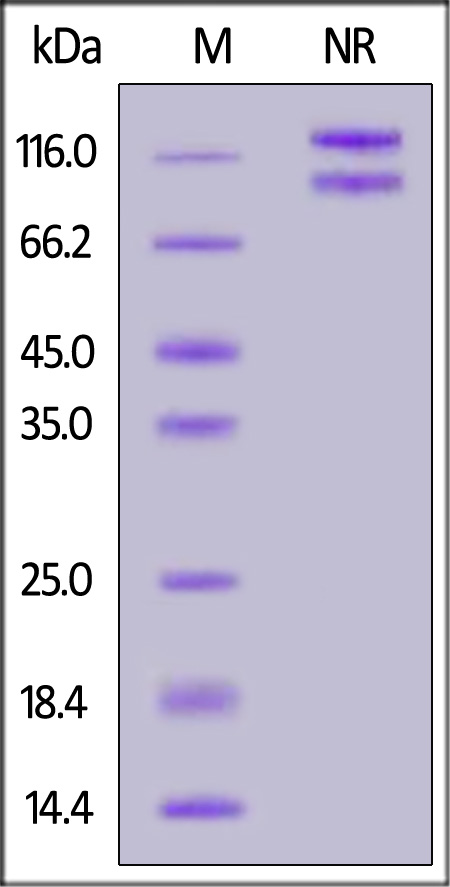 Human ITGA3&ITGB1 Heterodimer Protein, His Tag&Tag Free (Cat. No. IT1-H52Wc) SDS-PAGE gel