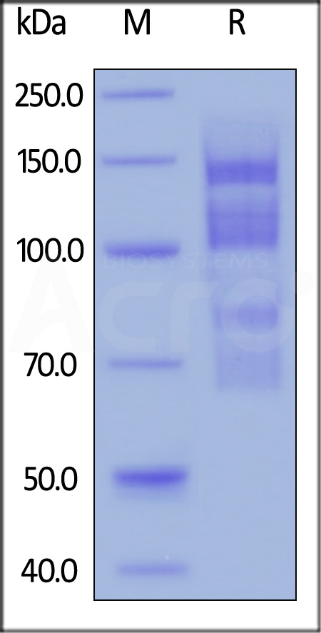 Biotinylated Human ITGA4 & ITGB1 Heterodimer Protein (Cat. No. IT1-H82W1) SDS-PAGE gel