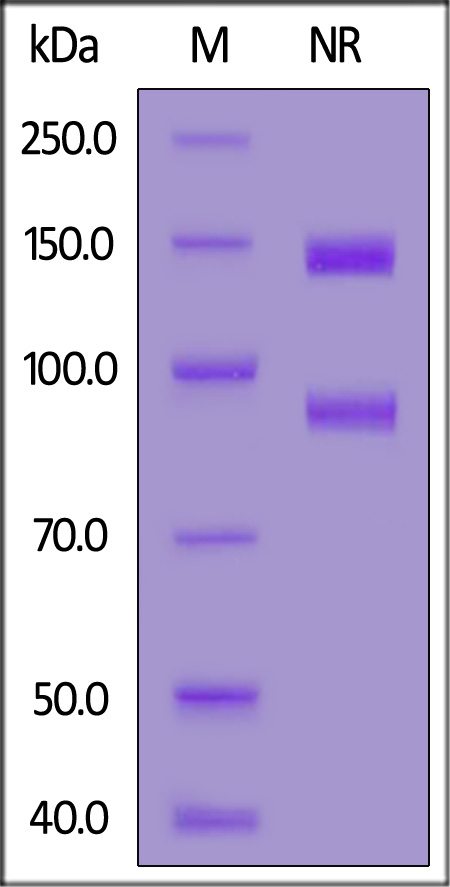 Human ITGAV&ITGB3 Heterodimer Protein, His Tag&Tag Free (Cat. No. IT3-H52E3) SDS-PAGE gel