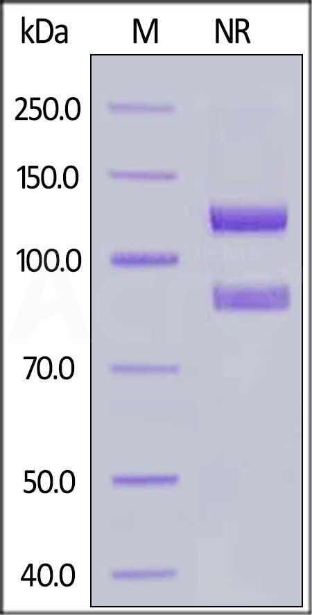 Human ITGAIIb & ITGB3 (Cat. No. IT3-H52W8) SDS-PAGE gel
