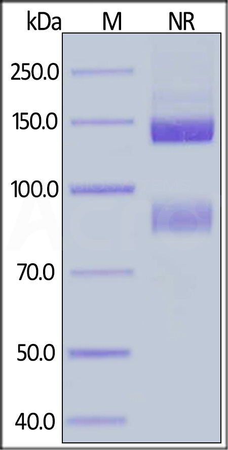 Human ITGAV&ITGB5 Heterodimer Protein, His Tag&Tag Free (Cat. No. IT5-H52W5) SDS-PAGE gel
