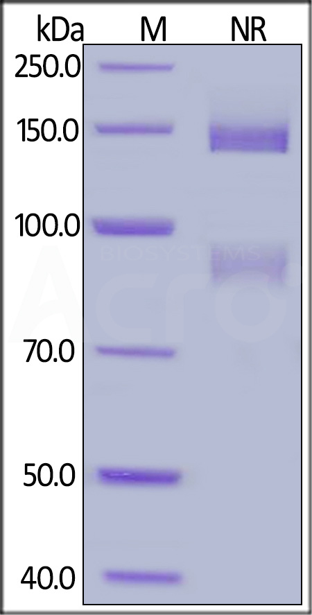 Biotinylated Human ITGAV&ITGB5 Heterodimer Protein, His,Avitag&Tag Free (Cat. No. IT5-H82Wa) SDS-PAGE gel