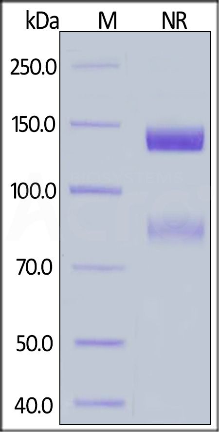 Human ITGAV&ITGB6 Heterodimer Protein, His Tag&Tag Free (Cat. No. IT6-H52E1) SDS-PAGE gel