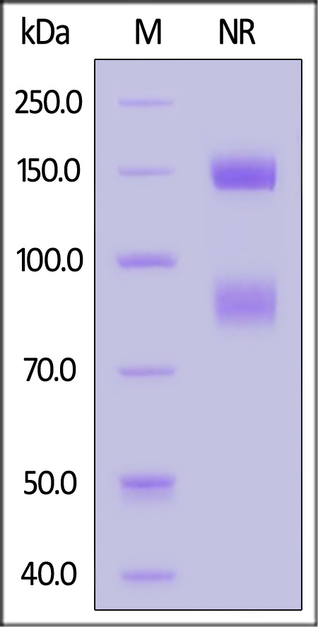 Biotinylated Human ITGAV & ITGB6 Heterodimer Protein (Cat. No. IT6-H82E4) SDS-PAGE gel