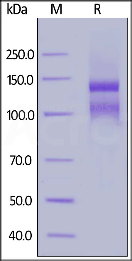 Human ITGAE & ITGB7 Heterodimer Protein (Cat. No. IT7-H52W7) SDS-PAGE gel