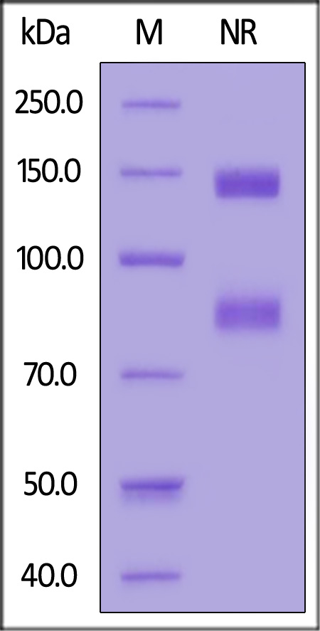 Biotinylated Human ITGAV&ITGB8 Heterodimer Protein, His,Avitag&Tag Free (Cat. No. IT8-H82W5) SDS-PAGE gel