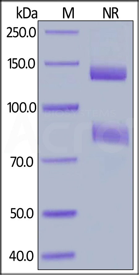 Mouse ITGAV&ITGB8 Heterodimer Protein, His Tag&Tag Free (Cat. No. IT8-M52W6) SDS-PAGE gel