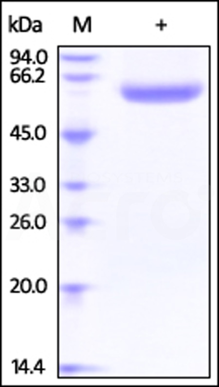 Human LBP / Lipopolysaccharide Protein ,His Tag (Cat. No. LBP-H52H5) SDS-PAGE gel