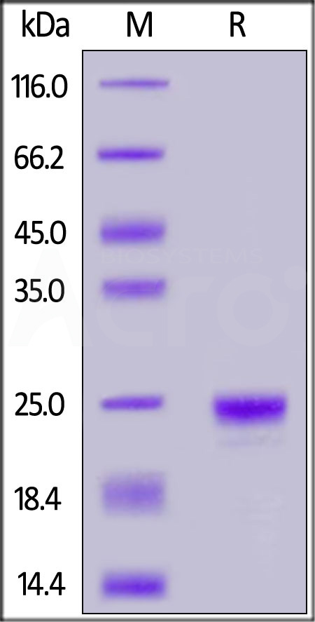 Human Lipocalin-2, His Tag (Cat. No. LC2-H5222) SDS-PAGE gel