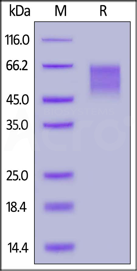 Human LYPD3, His Tag (Cat. No. LY3-H52H5) SDS-PAGE gel