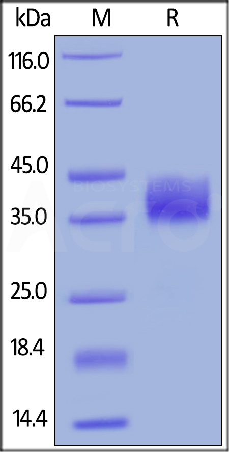 Human Mesothelin, His Tag (Cat. No. MSN-H5223) SDS-PAGE gel