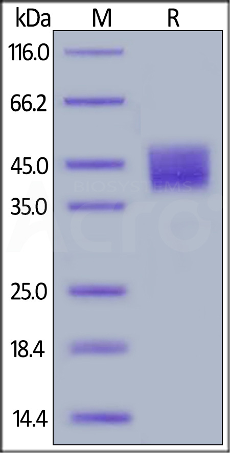 Human Mesothelin, His Tag, low endotoxin (Cat. No. MSN-H522a) SDS-PAGE gel