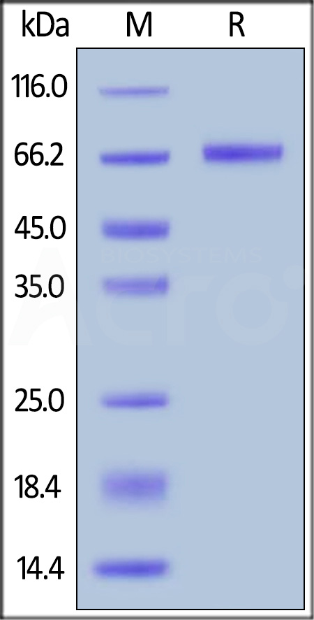 GFP Fusion Human Mesothelin (296-580), His Tag (Cat. No. MSN-HG2P4) SDS-PAGE gel