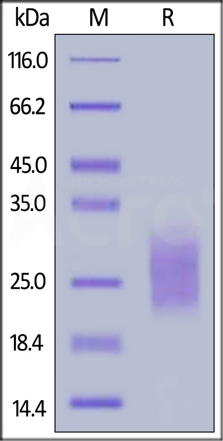 Human NKp30, His Tag (Cat. No. NC3-H5228) SDS-PAGE gel