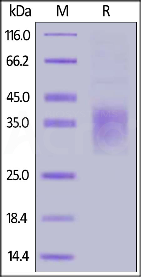 Human NKG2A, His Tag (Cat. No. NKA-H5244) SDS-PAGE gel
