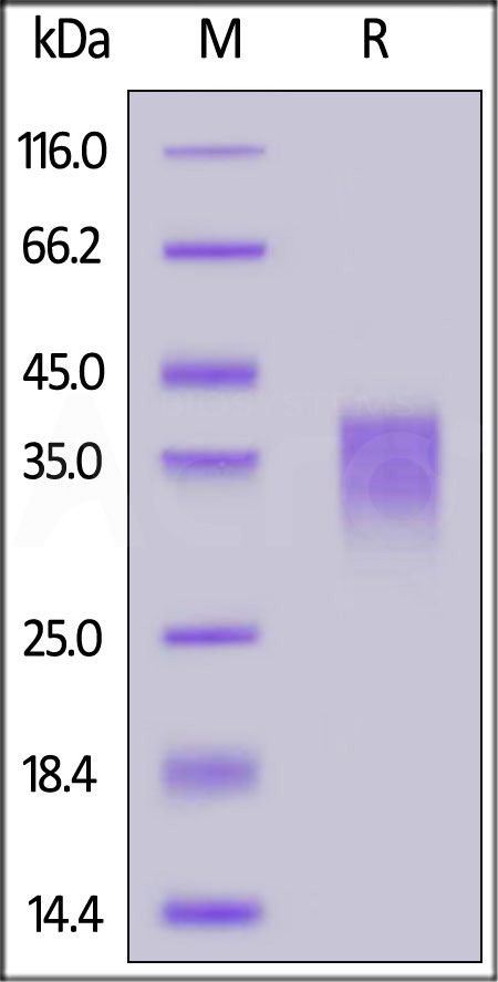Human NKG2C, His Tag (Cat. No. NKC-H5248) SDS-PAGE gel